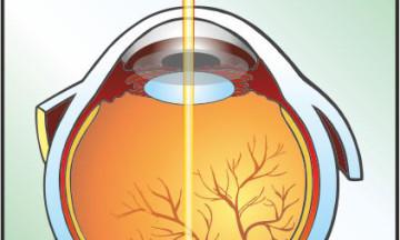 laser-retina